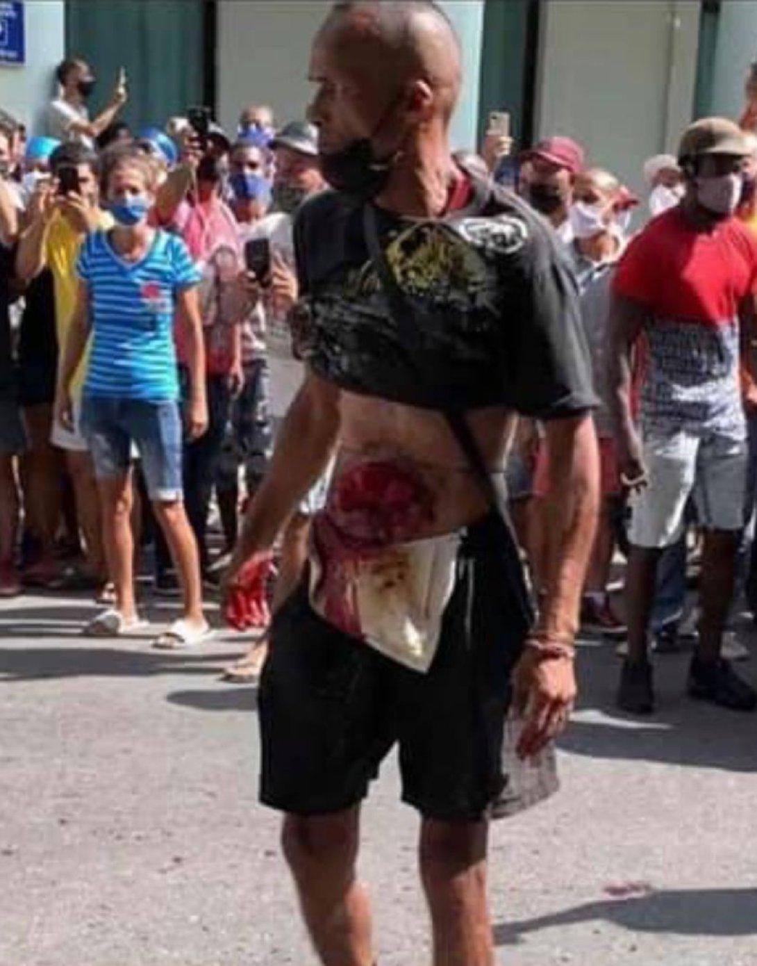 Un manifestante herido. Protestas en Cuba